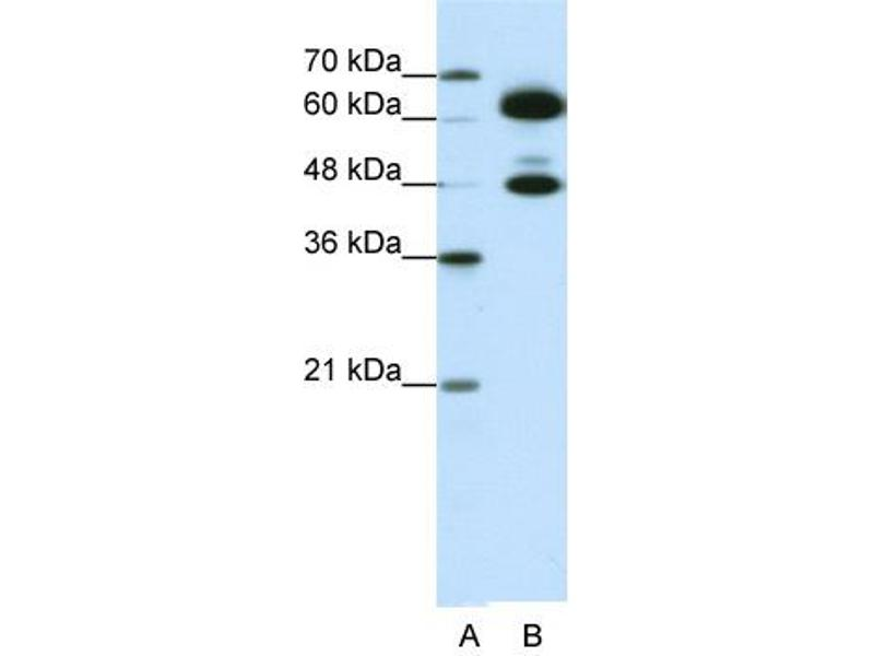 Western Blotting (WB) image for anti-Small Nuclear Ribonucleoprotein 70kDa (U1) (SNRNP70) (C-Term) antibody (ABIN183955)