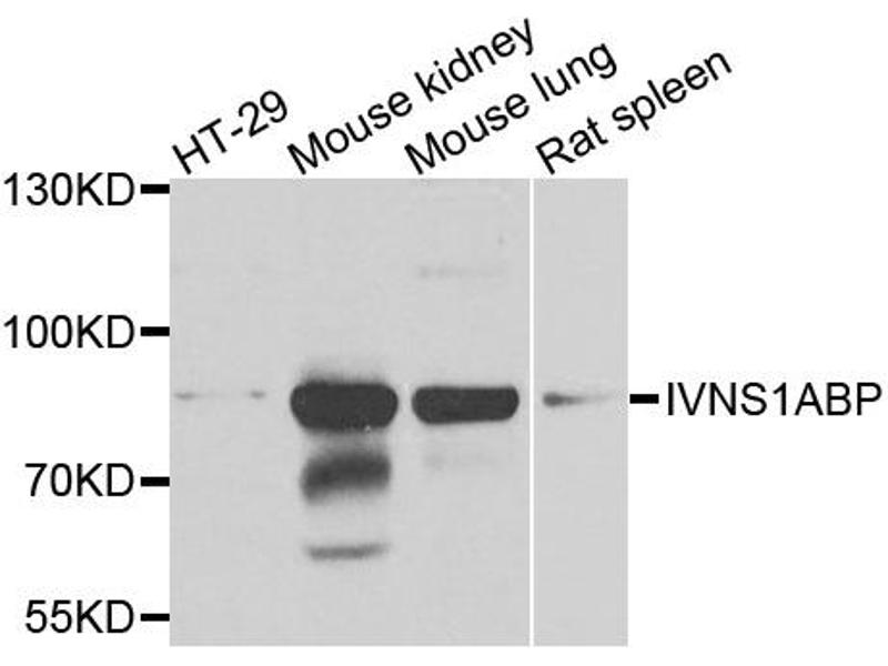 Image no. 2 for anti-Influenza Virus NS1A Binding Protein (IVNS1ABP) antibody (ABIN5972499)