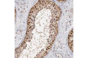 Immunohistochemistry (Paraffin-embedded Sections) (IHC (p)) image for anti-Cyclin B3 (CCNB3) antibody (ABIN4288907)