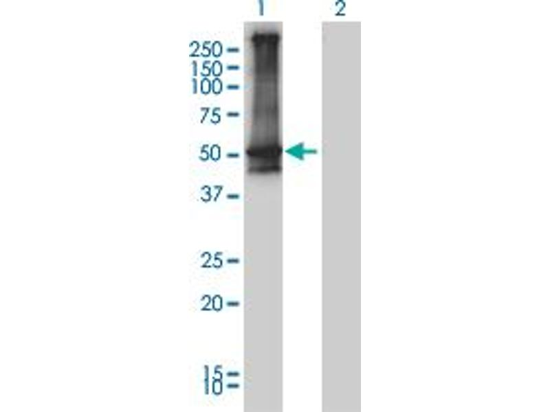 Western Blotting (WB) image for anti-Arrestin, beta 2 (ARRB2) (AA 300-410) antibody (ABIN393334)