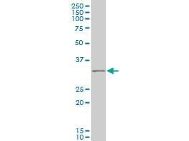 Immunohistochemistry (IHC) image for anti-Ring Finger Protein 144B (RNF144B) (AA 1-101) antibody (ABIN396360)