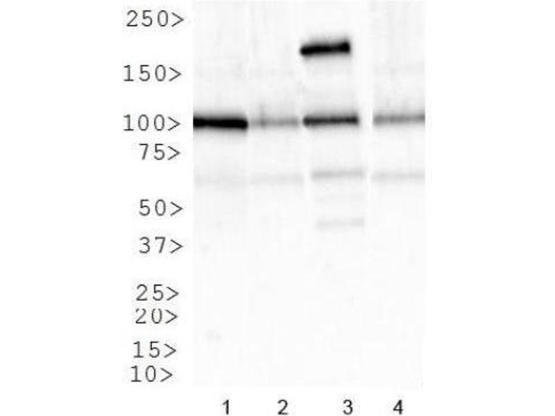 Western Blotting (WB) image for anti-Insulin-Like Growth Factor 1 Receptor (IGF1R) (AA 700-800), (Internal Region) antibody (ABIN4321576)
