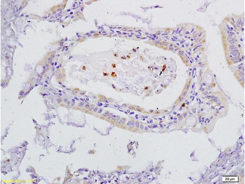 Immunohistochemistry (IHC) image for anti-FLT4 antibody (Fms-Related Tyrosine Kinase 4) (AA 910-960) (ABIN678578)