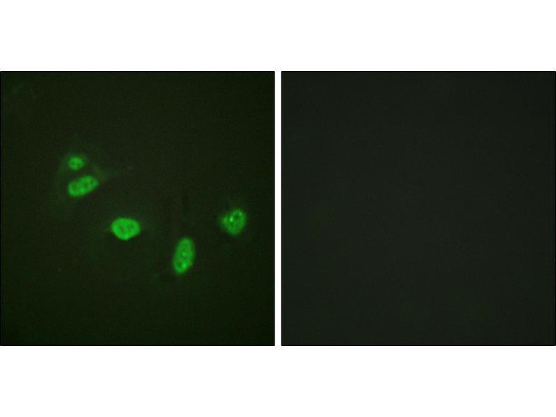 Image no. 2 for anti-V-Ets erythroblastosis Virus E26 Oncogene Homolog 1 (Avian) (ETS1) (pThr38) antibody (ABIN1576388)