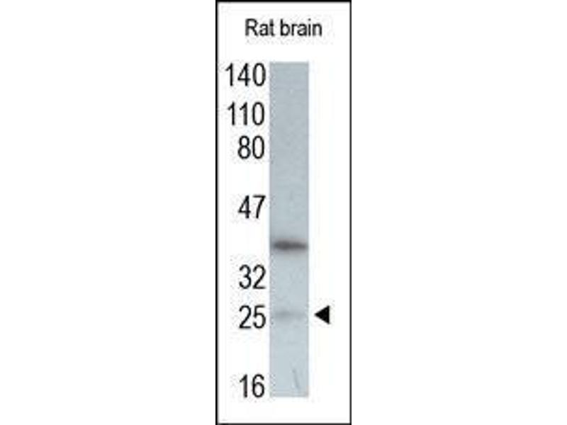 Western Blotting (WB) image for anti-Vascular Endothelial Growth Factor A (VEGFA) (N-Term) antibody (ABIN1585685)