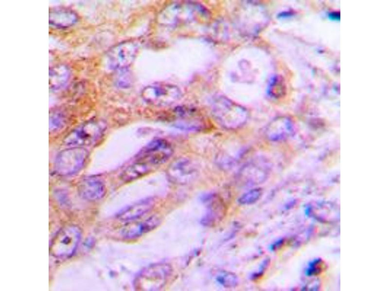 Immunohistochemistry (IHC) image for anti-Ribosomal Protein S6 Kinase, 70kDa, Polypeptide 1 (RPS6KB1) (Center) antibody (ABIN2707004)
