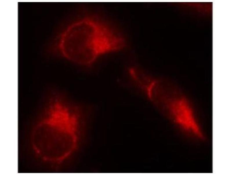 Immunofluorescence (IF) image for anti-Microtubule-Associated Protein tau (MAPT) (pSer356) antibody (ABIN2987478)