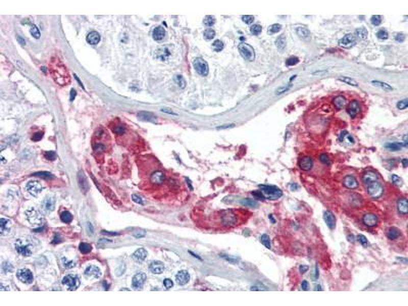 Immunohistochemistry (Paraffin-embedded Sections) (IHC (p)) image for anti-Coagulation Factor XII (Hageman Factor) (F12) antibody (ABIN364435)
