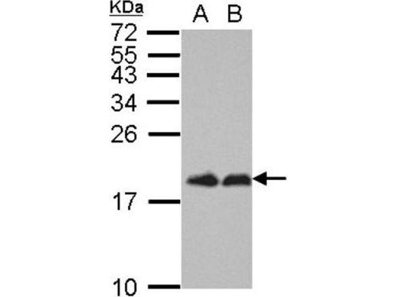 Western Blotting (WB) image for anti-EIF4EBP1 antibody (Eukaryotic Translation Initiation Factor 4E Binding Protein 1) (ABIN4276859)