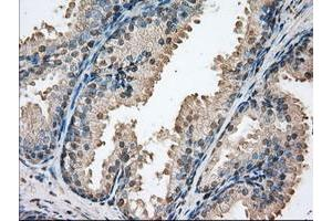 Image no. 1 for anti-Proto-Oncogene Pim-2 (Serine Threonine Kinase) (PIM2) antibody (ABIN1500220)