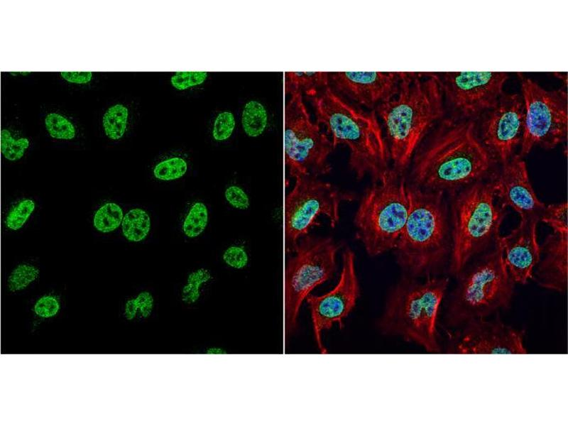 Immunofluorescence (IF) image for anti-HMGB1 antibody (High-Mobility Group Box 1) (Center) (ABIN2854997)