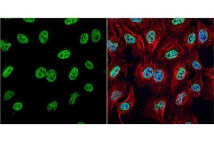 Image no. 7 for anti-High Mobility Group Box 1 (HMGB1) (Center) antibody (ABIN2854997)
