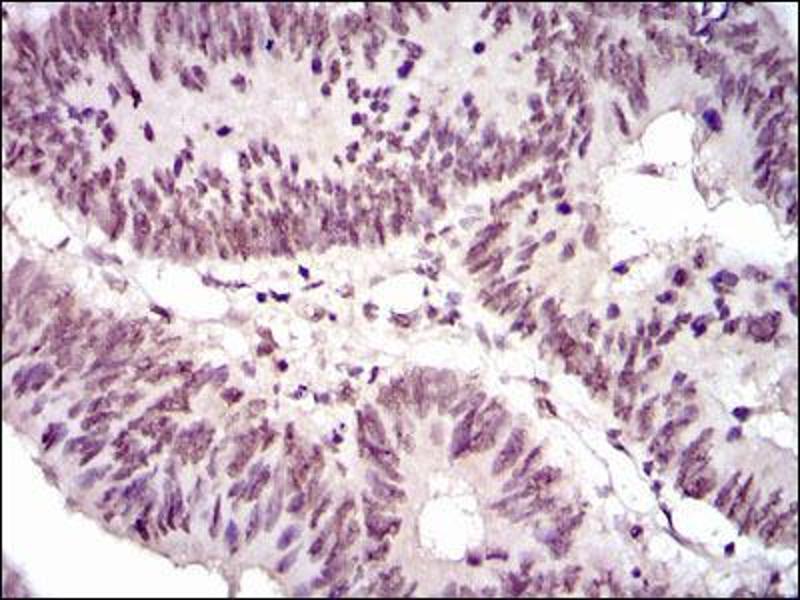 Immunohistochemistry (IHC) image for anti-NCK Adaptor Protein 1 (NCK1) antibody (ABIN969545)