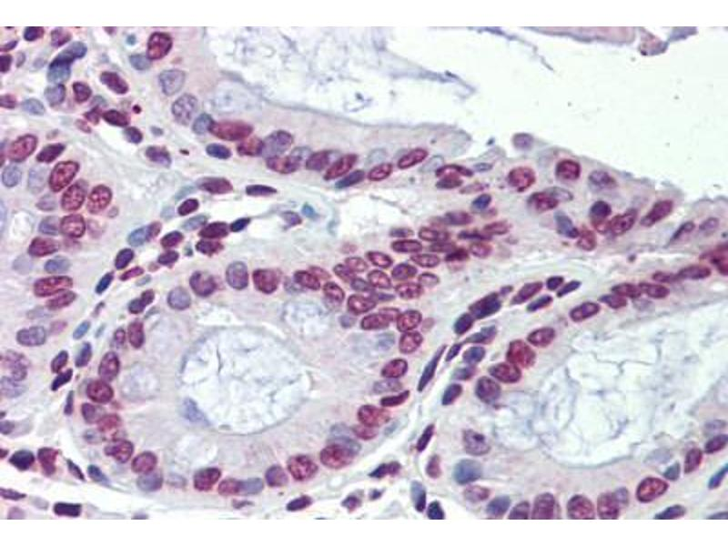 Immunohistochemistry (Paraffin-embedded Sections) (IHC (p)) image for anti-Nuclear Receptor Subfamily 1, Group H, Member 3 (NR1H3) (C-Term) antibody (ABIN6741573)
