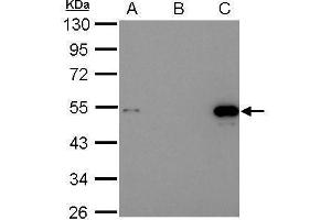 Image no. 4 for anti-Tumor Protein P53 (TP53) (Center) antibody (ABIN2855525)