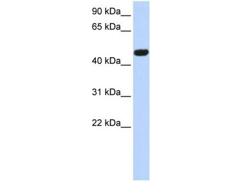 Western Blotting (WB) image for anti-Calcium Channel, Voltage-Dependent, beta 4 Subunit (CACNB4) (Middle Region) antibody (ABIN2774681)