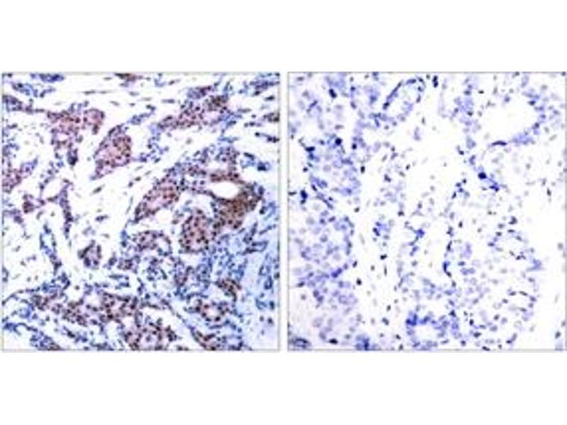 Immunohistochemistry (IHC) image for anti-C-JUN antibody (Jun Proto-Oncogene) (pSer73) (ABIN1531805)
