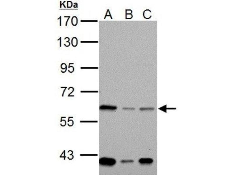Western Blotting (WB) image for anti-NADPH Oxidase 1 (NOX1) (Center) antibody (ABIN441545)