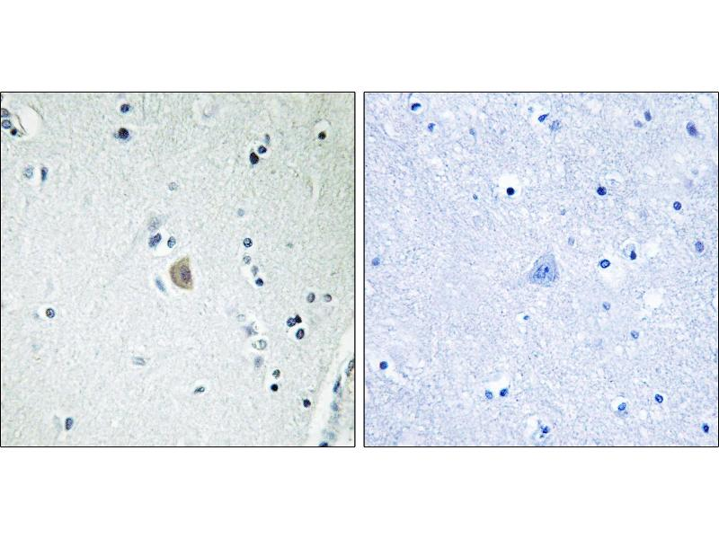 Image no. 1 for anti-Cytochrome P450, Family 2, Subfamily E, Polypeptide 1 (CYP2E1) antibody (ABIN1576002)