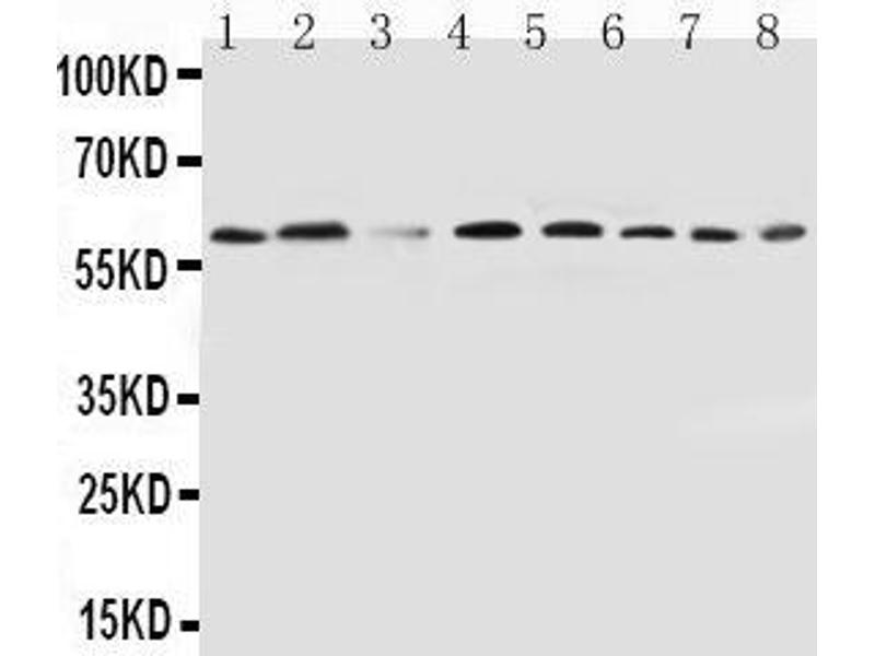 Western Blotting (WB) image for anti-Peroxisome Proliferator-Activated Receptor alpha (PPARA) (AA 393-412), (C-Term) antibody (ABIN3044397)