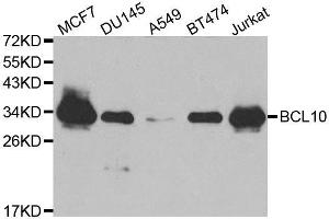 Western Blotting (WB) image for anti-BCL10 antibody (B-Cell CLL/lymphoma 10) (ABIN2403894)