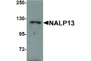 Image no. 1 for anti-NLR Family, Pyrin Domain Containing 13 (NLRP13) (N-Term) antibody (ABIN6655540)