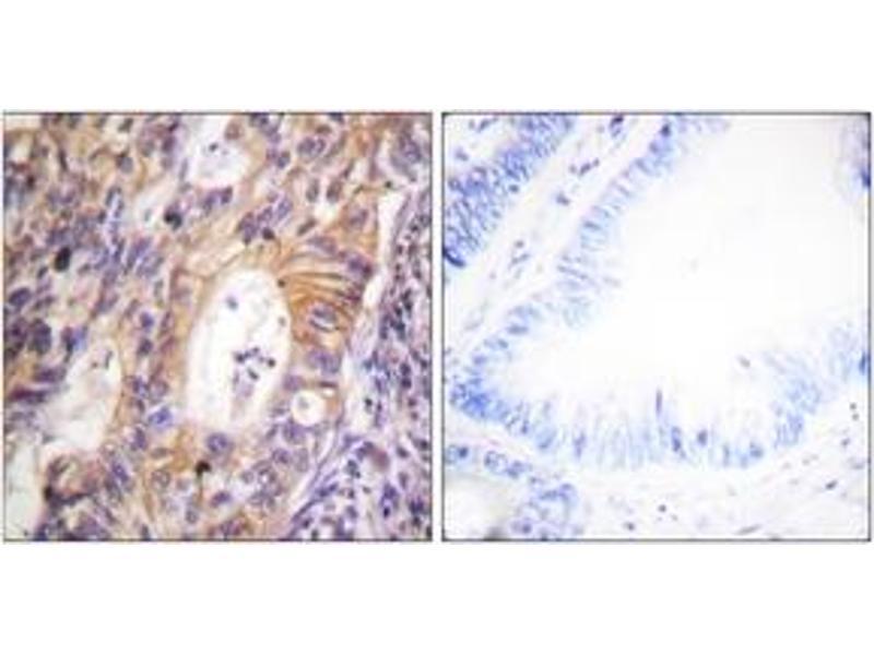 Immunohistochemistry (IHC) image for anti-Met Proto-Oncogene (MET) (AA 976-1025), (pTyr1003) antibody (ABIN1531559)