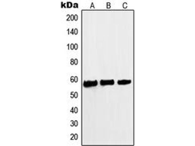 Western Blotting (WB) image for anti-V-Myc Myelocytomatosis Viral Oncogene Homolog (Avian) (MYC) (N-Term), (pSer62) antibody (ABIN2707378)