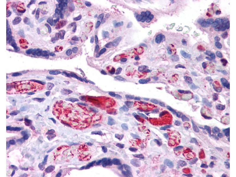 Immunohistochemistry (IHC) image for anti-Arginase, Liver (ARG1) (N-Term) antibody (ABIN2782309)