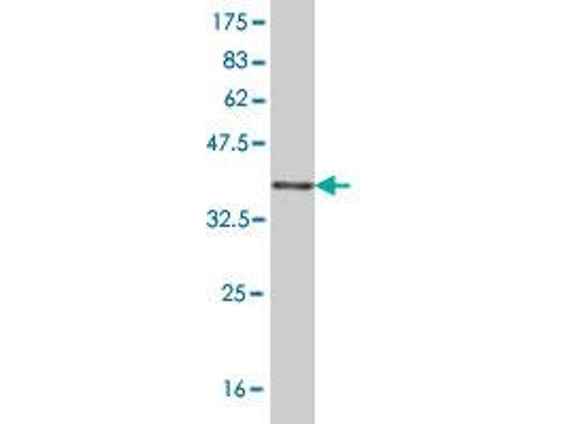 Western Blotting (WB) image for anti-V-Ral Simian Leukemia Viral Oncogene Homolog B (Ras Related, GTP Binding Protein) (Ralb) (AA 89-183) antibody (ABIN396308)