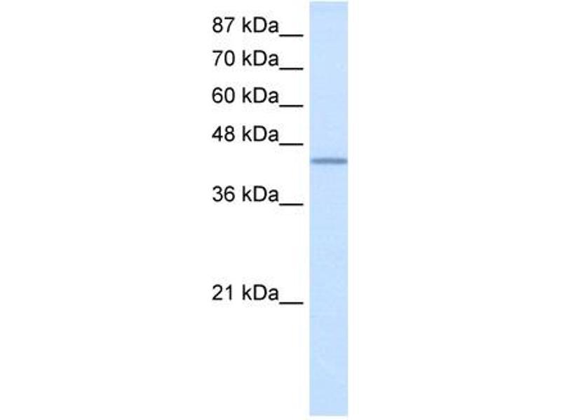 Western Blotting (WB) image for anti-RNA Binding Motif Protein 9 (RBM9) (N-Term) antibody (ABIN183932)