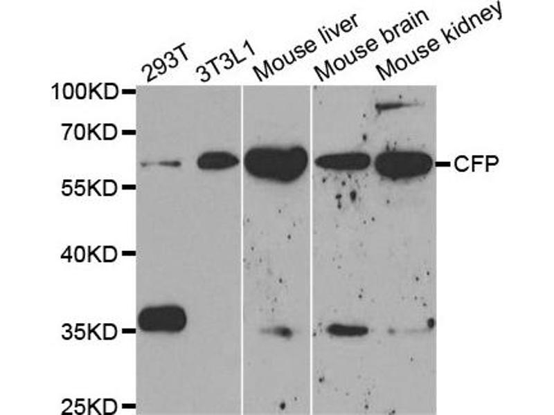 Western Blotting (WB) image for anti-CFP antibody (Complement Factor P) (ABIN1876586)