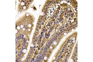 Immunohistochemistry (IHC) image for anti-Cytoplasmic Linker Associated Protein 1 (CLASP1) antibody (ABIN2561882)