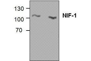 Image no. 1 for anti-Zinc Finger Protein 335 (ZNF335) antibody (ABIN411545)