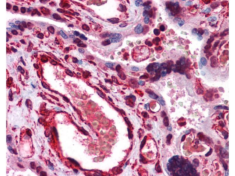 Immunohistochemistry (IHC) image for anti-LIPG antibody (Lipase, Endothelial) (Middle Region) (ABIN486808)