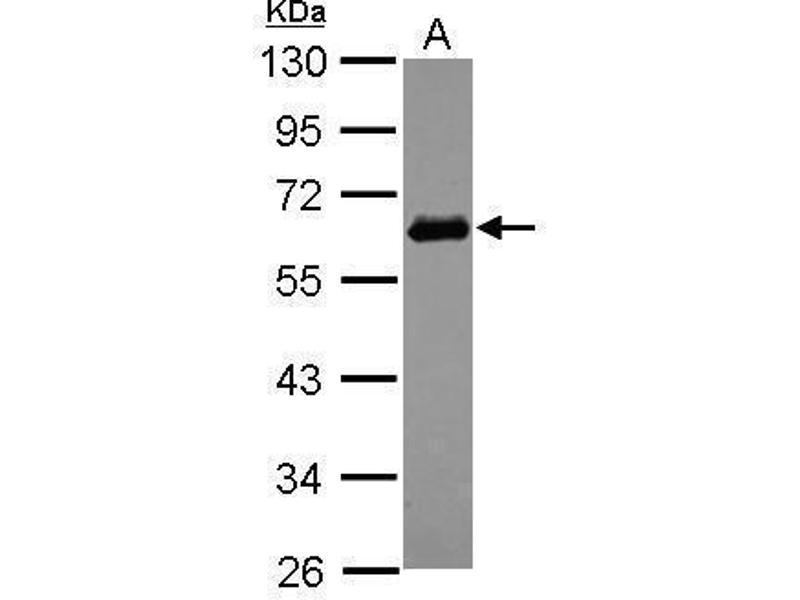 Western Blotting (WB) image for anti-Sequestosome 1 (SQSTM1) (Internal Region) antibody (ABIN2854836)