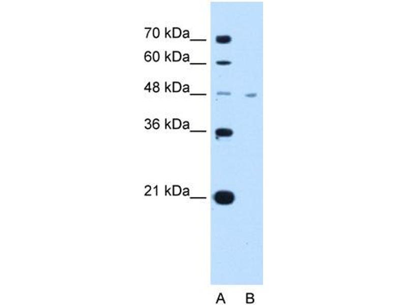 Western Blotting (WB) image for anti-SLC16A1 Antikörper (Solute Carrier Family 16, Member 1 (Monocarboxylic Acid Transporter 1)) (Middle Region) (ABIN2781585)