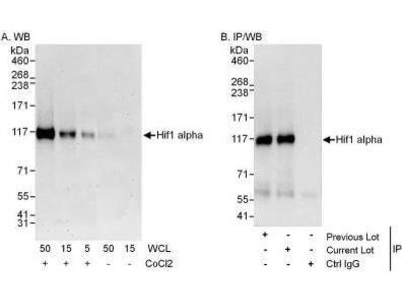 Western Blotting (WB) image for anti-Hypoxia Inducible Factor 1, alpha Subunit (Basic Helix-Loop-Helix Transcription Factor) (HIF1A) (C-Term) antibody (ABIN151900)