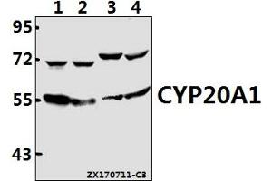 Image no. 1 for anti-Cytochrome P450, Family 20, Subfamily A, Polypeptide 1 (CYP20A1) (AA 380-430) antibody (ABIN6711284)