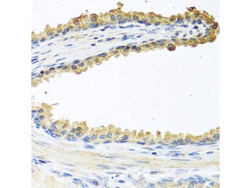 Immunohistochemistry (IHC) image for anti-Coagulation Factor C Homolog, Cochlin (Limulus Polyphemus) (COCH) antibody (ABIN2561916)