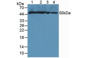 Image no. 4 for anti-Vascular Cell Adhesion Molecule 1 (VCAM1) (AA 116-309) antibody (ABIN2905417)