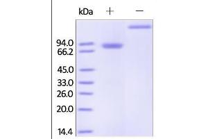 Image no. 1 for Tumor Necrosis Factor Receptor Superfamily, Member 11b (TNFRSF11B) (AA 22-401) protein (Fc Tag) (ABIN2181849)