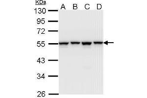 Western Blotting (WB) image for anti-Heterogeneous Nuclear Ribonucleoprotein H1 (H) (HNRNPH1) (Center) antibody (ABIN2855275)