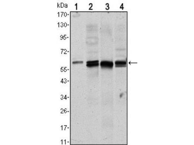 Western Blotting (WB) image for anti-V-Akt Murine Thymoma Viral Oncogene Homolog 1 (AKT1) antibody (ABIN4278998)