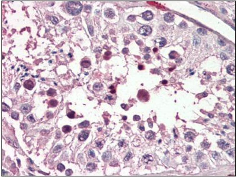 Immunohistochemistry (Paraffin-embedded Sections) (IHC (p)) image for anti-PIAS2 antibody (Protein Inhibitor of Activated STAT, 2) (Internal Region) (ABIN614937)