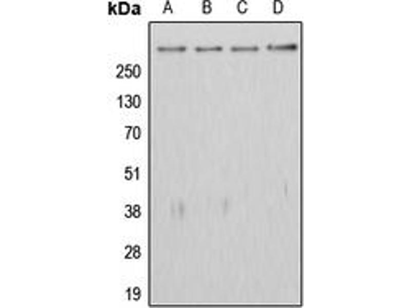 Western Blotting (WB) image for anti-Adenomatous Polyposis Coli (APC) (C-Term) antibody (ABIN2704484)