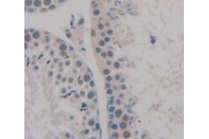 Image no. 3 for anti-NIMA (Never in Mitosis Gene A)-Related Kinase 2 (NEK2) (AA 125-393) antibody (ABIN5014007)
