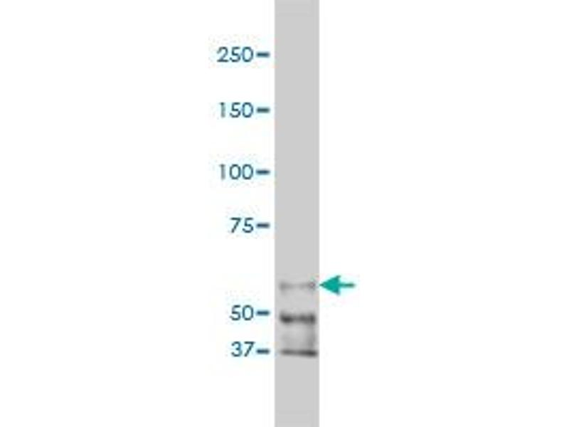 Western Blotting (WB) image for anti-P21-Activated Kinase 1 (PAK1) (AA 191-280), (partial) antibody (ABIN562102)