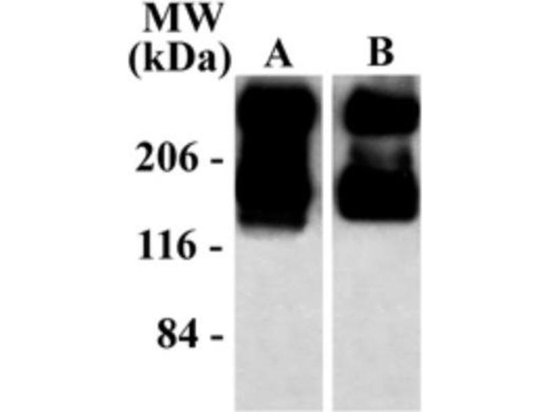 Western Blotting (WB) image for anti-Glutamate Receptor, Metabotropic 5 (GRM5) (C-Term) antibody (ABIN152473)