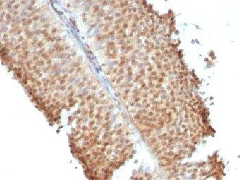 Immunohistochemistry (IHC) image for anti-Estrogen Receptor 2 (ER Beta) (ESR2) (C-Term) antibody (ABIN3024794)